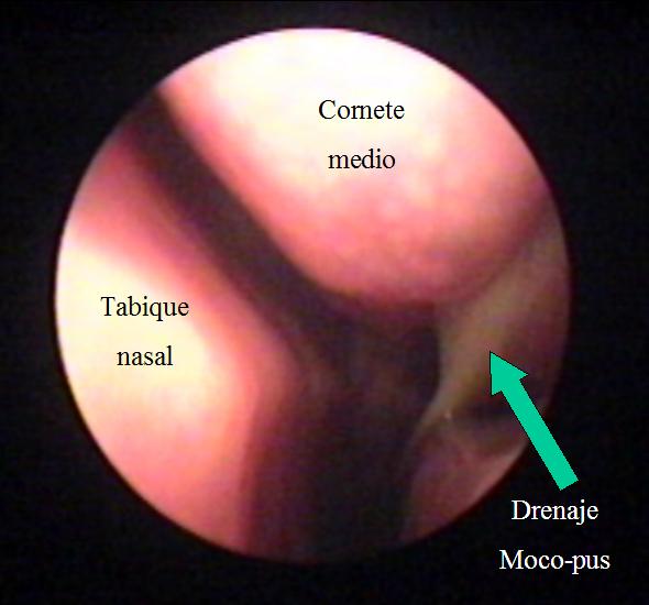 Sinusitis aguda   Dr. Carbonell – Otorrinolaringología Pediátrica