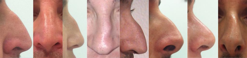 4 Cirugía pirámide nasal